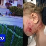 Jewish Boy Attacked by Neighbor's Pit Bull
