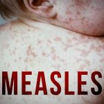 Another Case of Measles Confirmed in Crown Heights